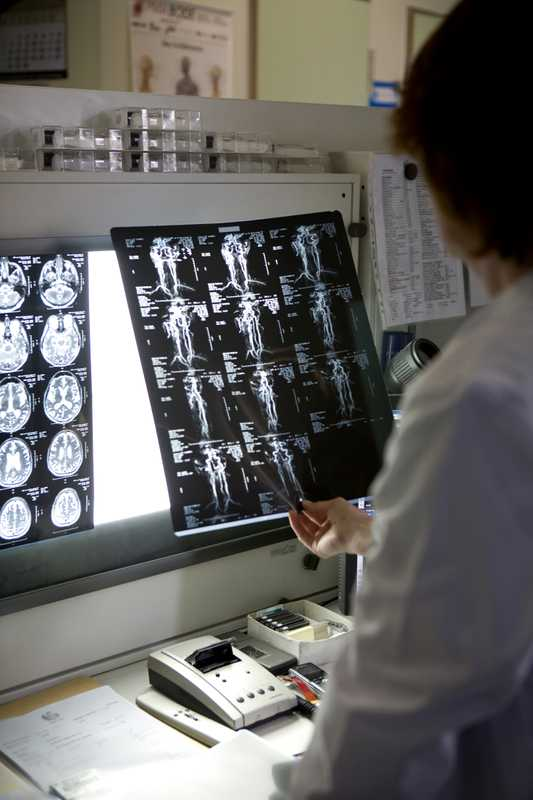 A doctor at Berlin's Meoclinic examines tomography images